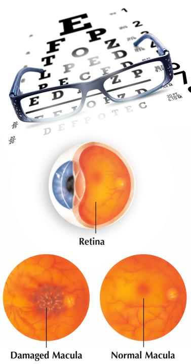 eye-chart-macula.jpg